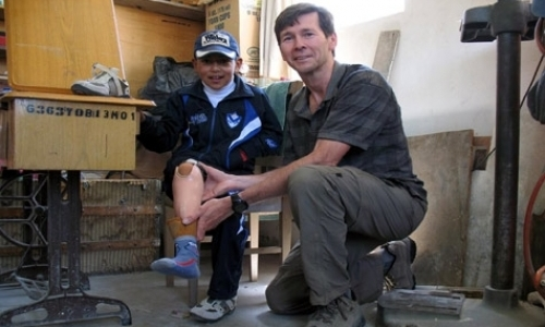 Prosthetic Clinic for Low-Income Bolivians